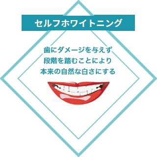 セルフホワイトニング:歯にダメージを与えず段階を踏むことにより本来の自然な白さにする