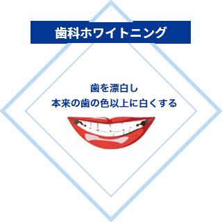 歯科ホワイトニング:歯を漂白し、本来の歯の色以上に白くする